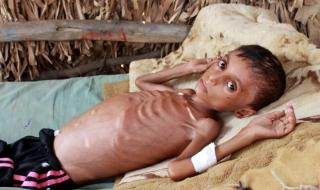 """غوتيريس يحذر من خطر المجاعة في اليمن و""""خسارة ملايين الأرواح"""""""