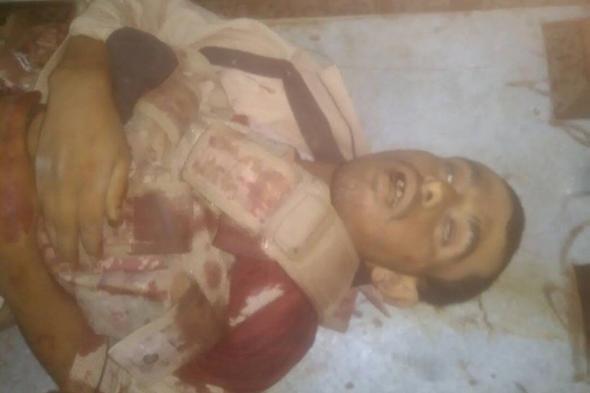 مقتل القيادي في الحزام الأمني محمد باثور وخمسة من مرافقية خلال اشتباكات متقطعة في جعار بأبين