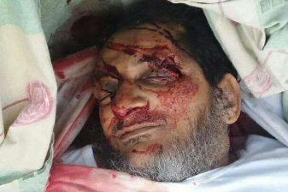 عاجل|إغتيال الشيخ فهد اليونسي إمام مسجد الصحابة بعدن