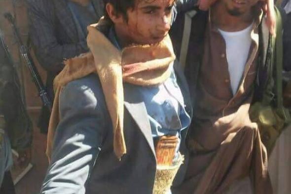 شاهد بالصورة .. نجل صالح مدين وتظهر عليه آثار التعذيب