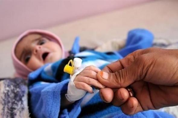 """""""يونيسف"""": مليونا طفل يعانون من سوء التغذية الحاد في اليمن"""